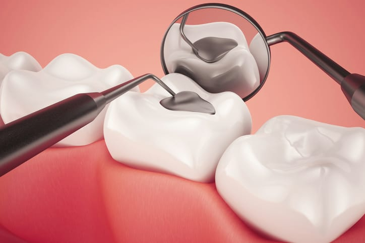 How Do Tooth Fillings Work?