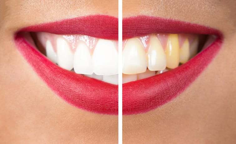 Exploring Your Teeth Whitening Options